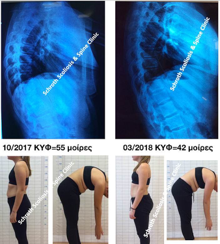 A.A. kyphosis improvement schroth scoliosis spine clinic