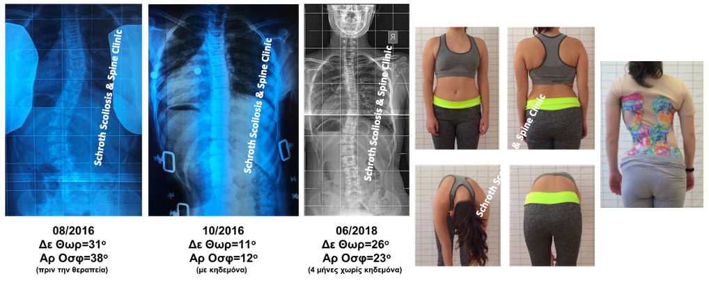 A.L. braceexercises scoliosis treatment schroth scoliosis spine clinic