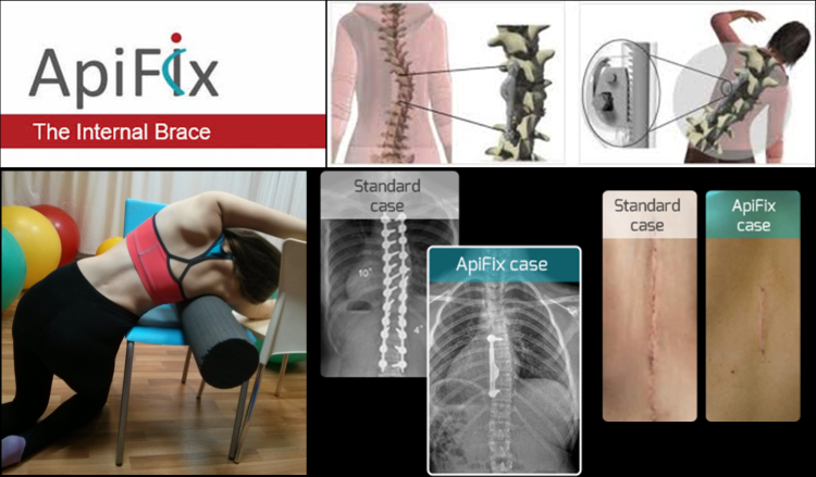 apifix treatment for scoliosis