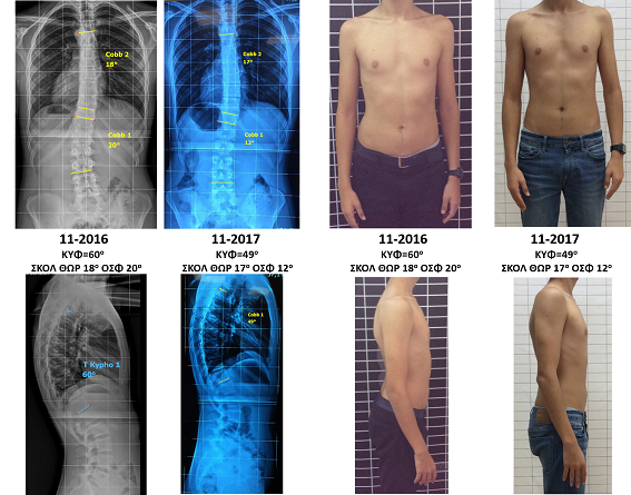 Dagres Schroth exercises scoliosis kyphosis improvement