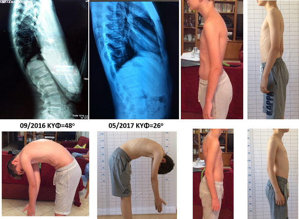 Eugenikos kyphosis improvement schroth exercises