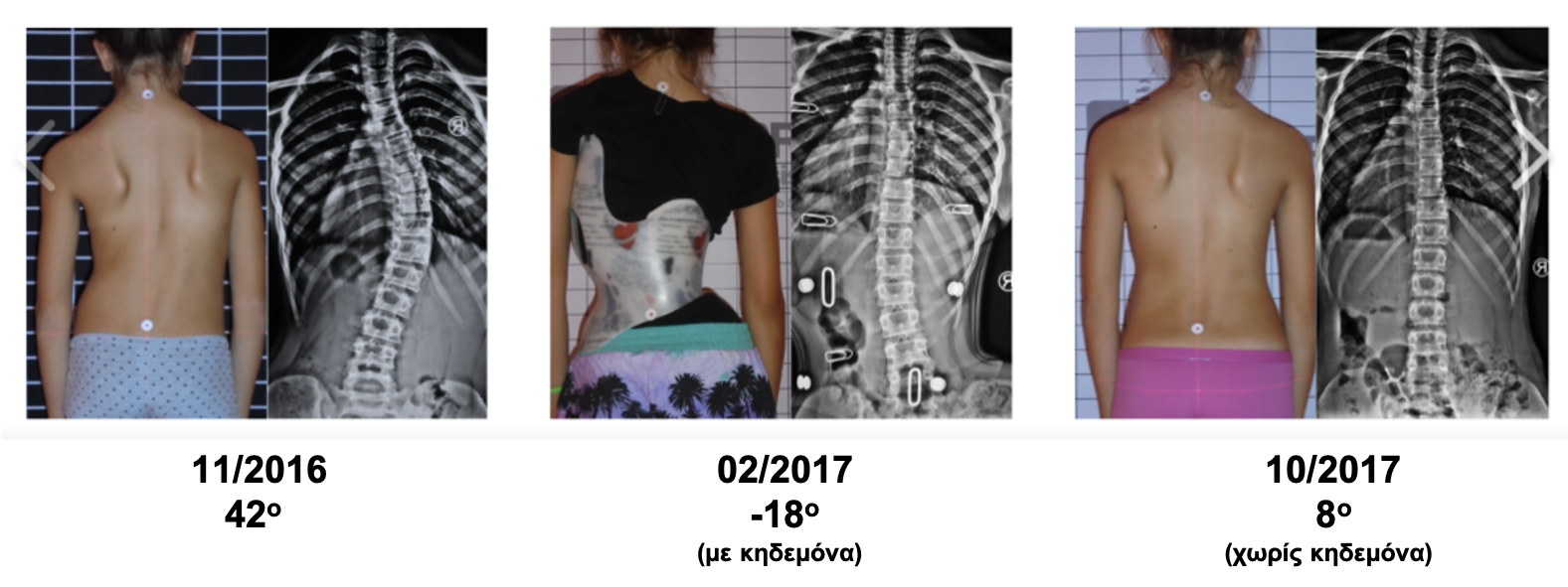 I.E. brace and Schroth scoliosis treatment