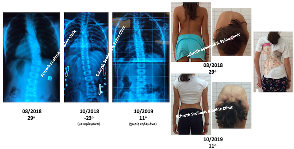 K.V. brace and schroth treatment improvement schroth scoliosis spine clinic