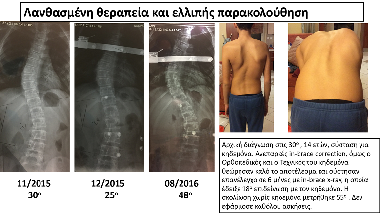 Lukitsakos scoliosis progression in brace