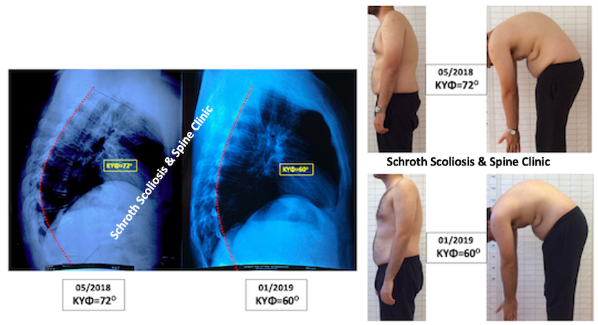 M.E. kyphosis correction Schroth exercises Schroth Scoliosis Spine Clinic