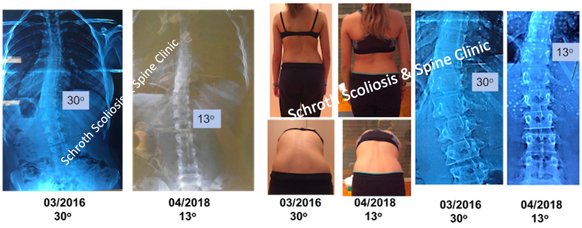 M.E. photos Schroth BSPTS improvement Schroth Scoliosis Spine Clinic