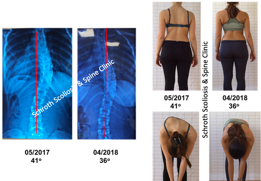 M.I. photos Schroth BSPTS improvement Schroth Scoliosis Spine Clinic