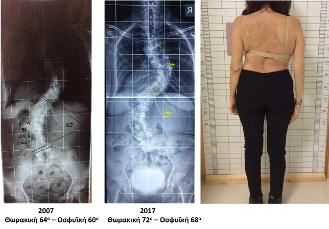 Meziti scoliosis progression doing pilates