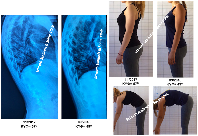 N.K. kyphosis improvement schroth seas exercises Schroth scoliosis spine clinic