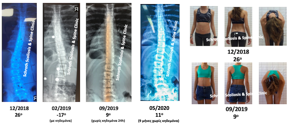 N.K. brace and Schroth scoliosis treatment schroth scoliosis spine clinic
