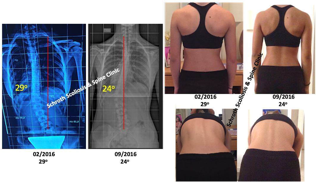 N.K.adolescent scoliosis Cobb angle and posture correction Schroth Scoliosis Spine Clinic