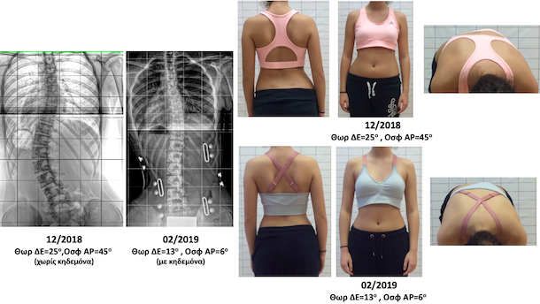P.L. brace and Schroth scoliosis treatment αντιγραφο