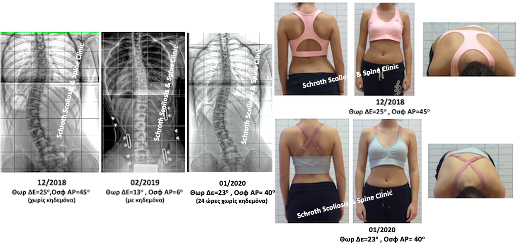 P.L. brace and Schroth scoliosis treatment schroth scoliosis spine clinic