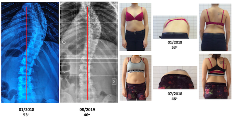 S.V. adult scoliosis Schroth improvement updated.2