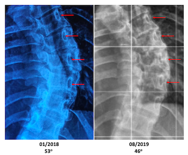 S.V. adult scoliosis Schroth improvement vertebra rotation