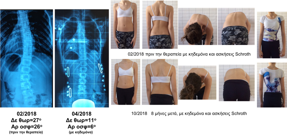 T.Z. braceSchroth scoliosis treatment
