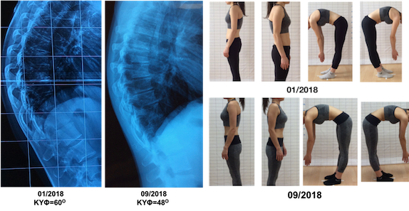 Voultsou kyphosis correction schroth