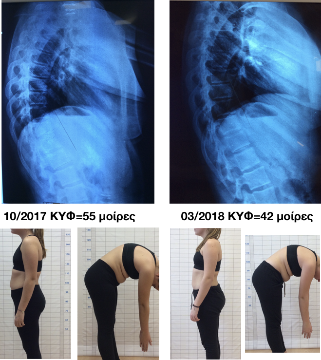 anastasatou kyphosis improvement schroth