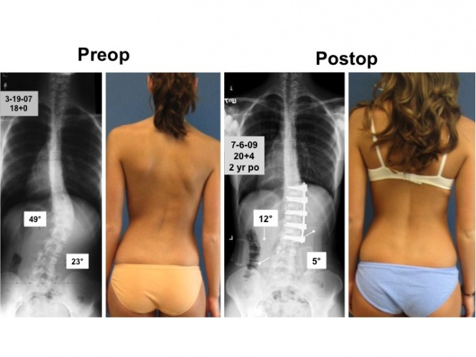 spinal fusion anterior approach