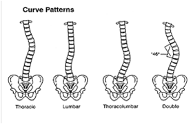 scoliosis curve pattern