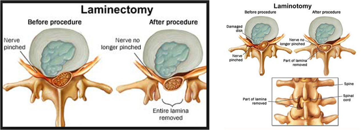 laminectomy and laminotomy