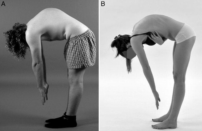 differential diagnosis postural and scheuermann kyphosis