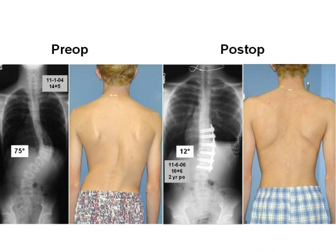 spinal fusion pre and post