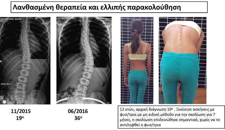 spinthouraki scoliosis progression