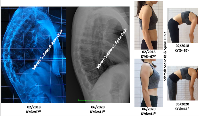 v.i.adult kyphosis correction schroth scoliosis spine clinic